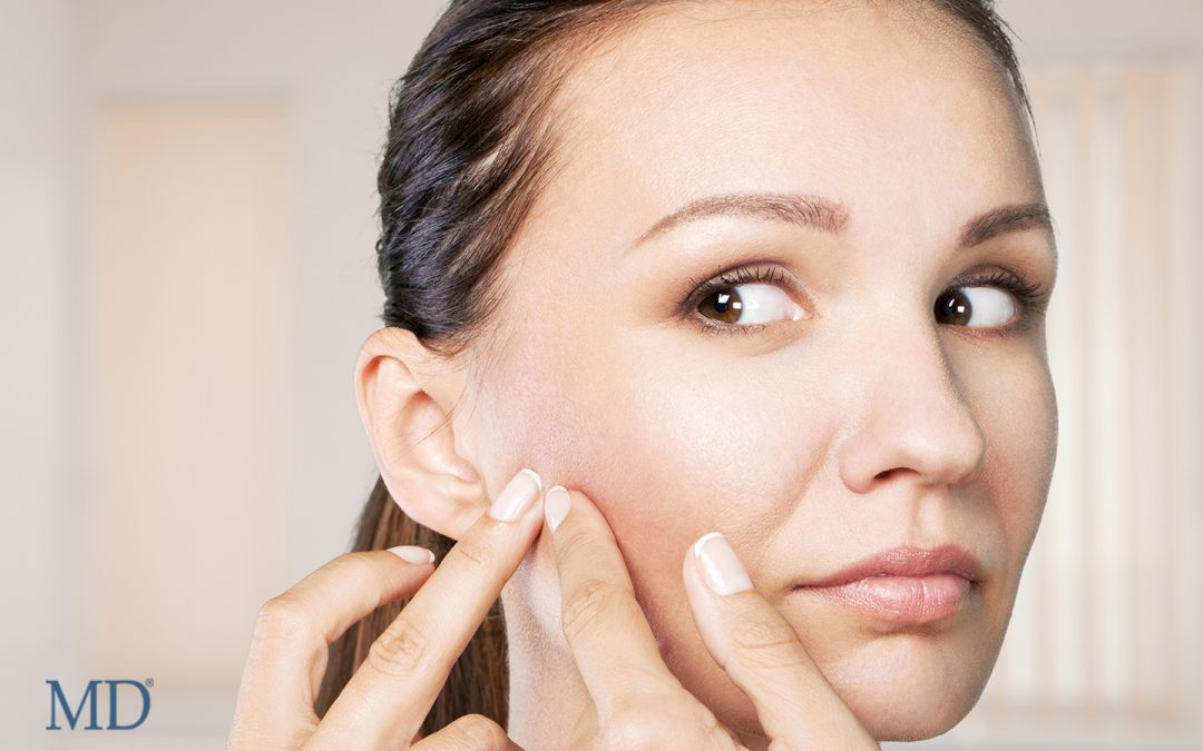 Skin Problems? It's MD to the Rescue!