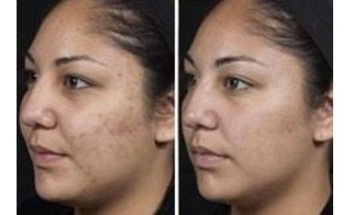 botox kybella health skin beauty beautybotox treatment procedure hair sale eyes makeup up make up color restoration