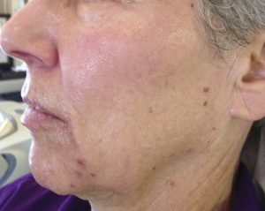 Skin Rejuveantional before jpg