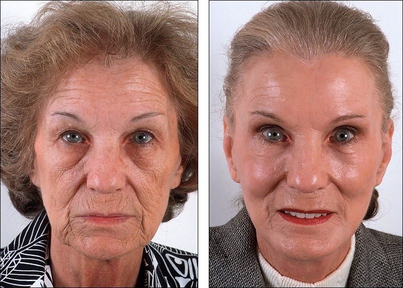Best Treatment For Deep Wrinkles Around Mouth How You Can