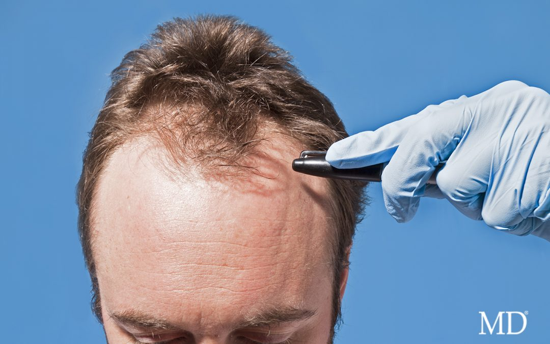 Hair Transplant? …Don't Forget Your MD®!