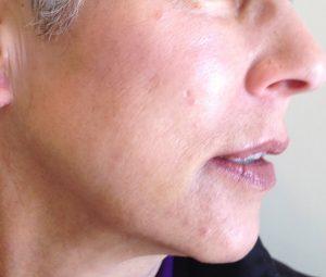 Skin Rejuvenation After