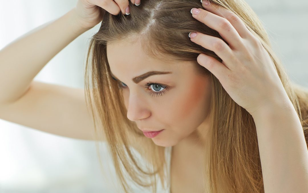 Hair Loss: Myths And Truths Hereditary Hair Loss Affects 40% of Men and 25% of Women in the U.S.