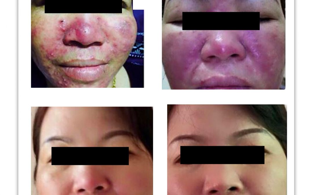 MD: An Effective, Scientific Approach to Acne Treatment