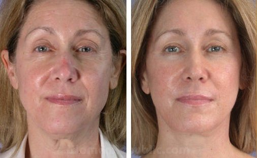 before-after-photofacial