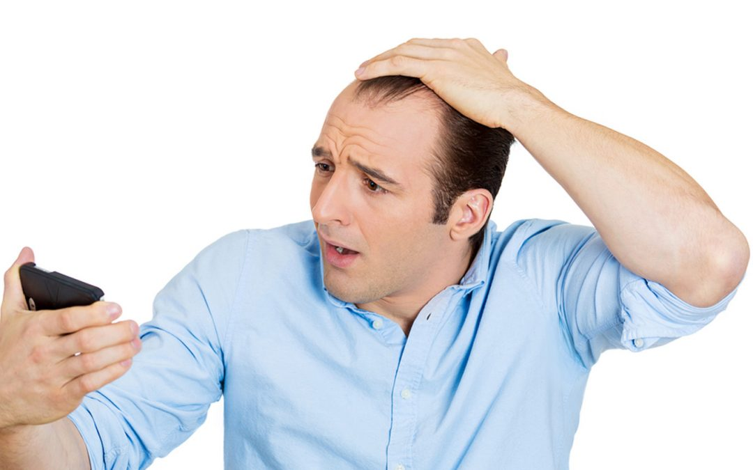 Men aren't the only ones who experience thinning hair in their lifetimes.