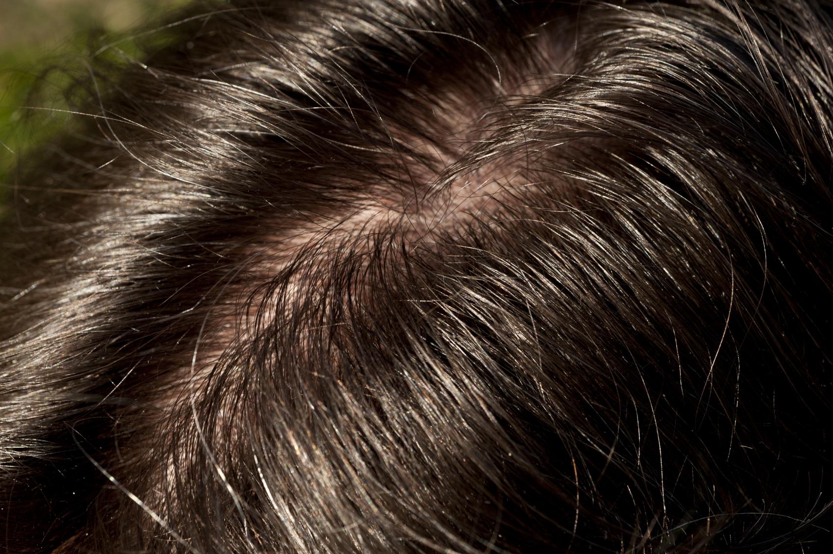 Hair Loss Greasy 18801904_Medium