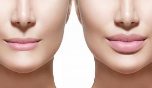 Best lip Augmentation Treatment