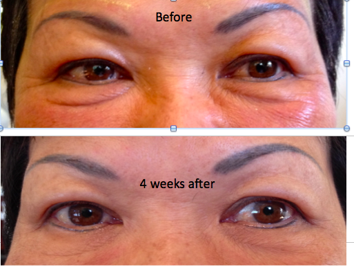 Growth Factor Skin Tightening