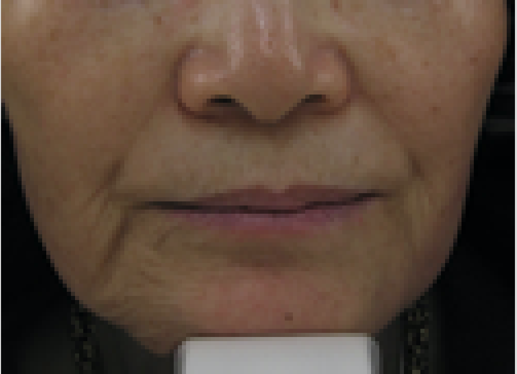 restylane before