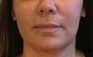 instalift after 3 skin rejuvination