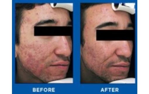 acne-before-after