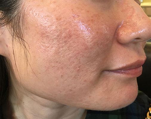 acne_before