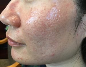 acne treatment from med spa San Francisco California