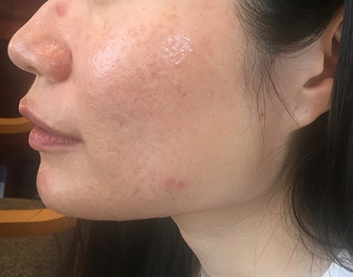 ACNE_after