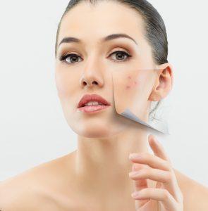 Botox San Francisco, CA, Should I Invest?